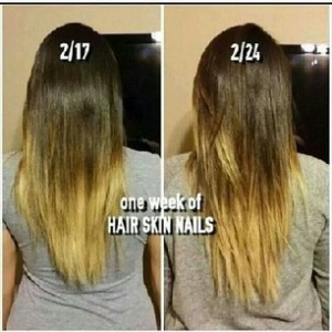hairgrowth4